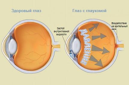 Мышечные боли лечение мази