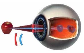 Какие есть операции на восстановление зрения